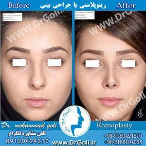 رینوپلاستی یا جراحی بینی