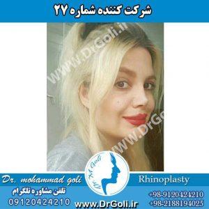 شرکت کننده شماره 27 مسابقه جراحی بینی دکتر گلی