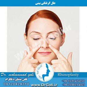 علل گرفتگی بینی