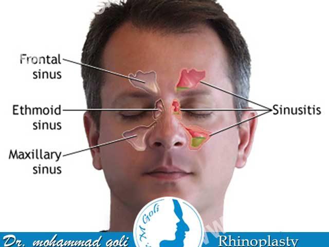 پولیپ بینی چیست و درمان آن چگونه است