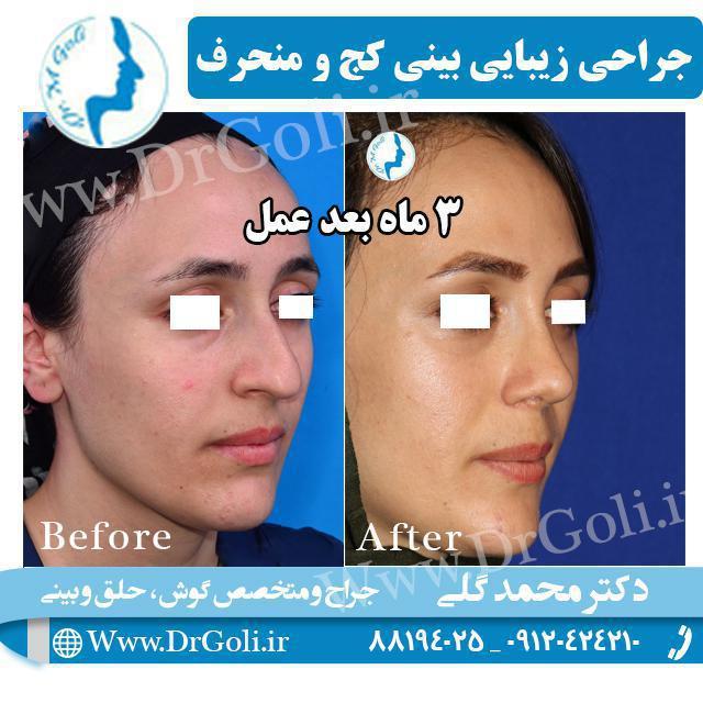 جراحی زیبایی بینی کج و منحرف 4