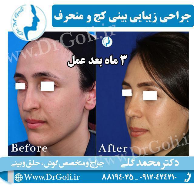 جراحی زیبایی بینی کج و منحرف 5
