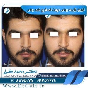اصلاح فرم بینی با تزریق ژل