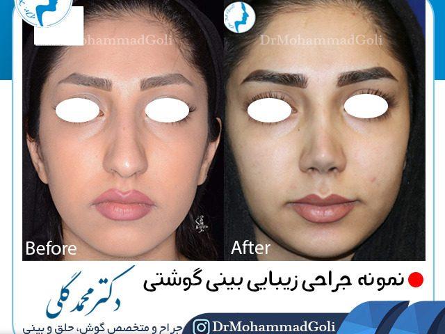 نمونه جراحی بینی توسط دکتر محمد گلی
