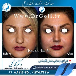 عمل بینی طبیعی توسط دکتر محمدگلی