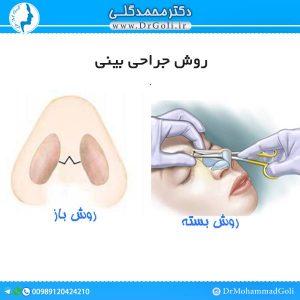 روش جراحی بینی