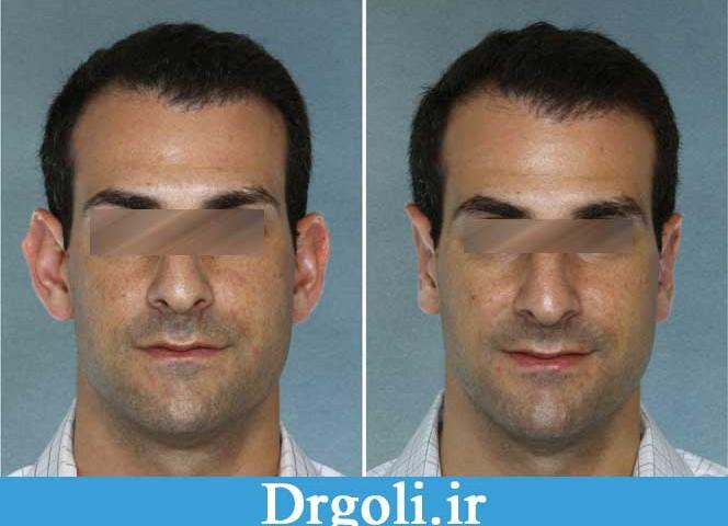 auricle-ears-surgery