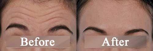forehead-wrinkles-surgery