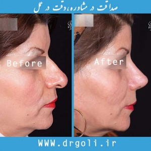 nose surgery 26