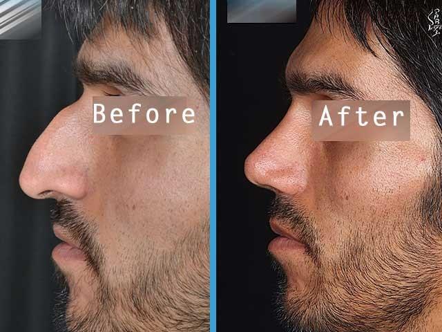 درمان ورم و التهاب بعد از عمل بینی
