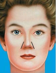 جراحی بینی زیبا