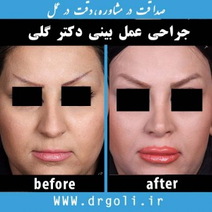 دکتر گلی -عمل بینی