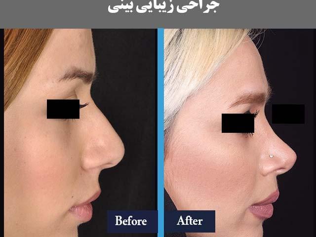 هزینه جراحی بینی قزوین