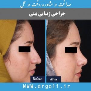 جراحی زیبایی بینی غضروفی