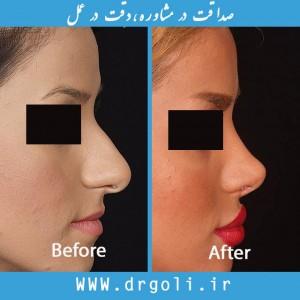 جراحی بینی سر بالا