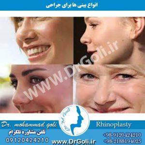 انواع بینی ها برای جراحی