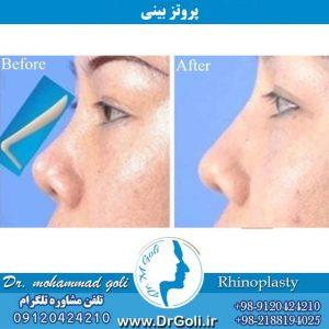 کاربرد پروتز جراحی بینی