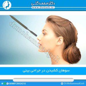 سوهان کشیدن در جراحی بینی