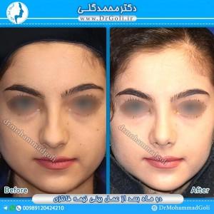 جراحی-بینی-نیمه-فانتزی-4