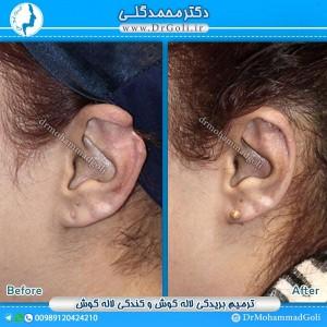 جراحی-لاله-گوش-1