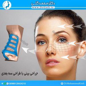 جراحی بینی با طراحی سه بعدی