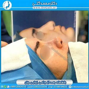 ارزیابی قبل از جراحی زیبایی بینی