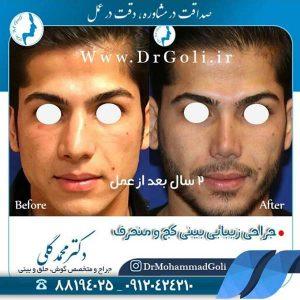 نکاتی برای بهبودی سریع تر در جراحی بینی