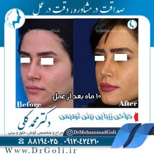 چه مدلی برای بینی من مناسب است ؟