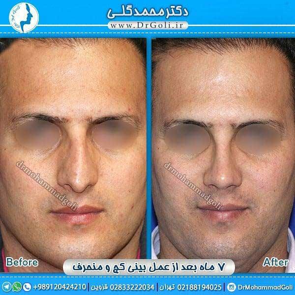 تغییر صدا در جراحی بینی