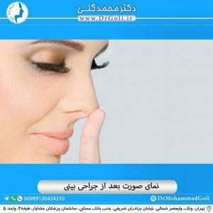 نمای صورت بعد از جراحی بینی