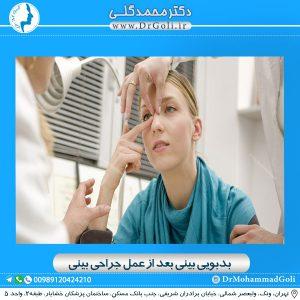 بدبویی بینی بعد از عمل جراحی بینی