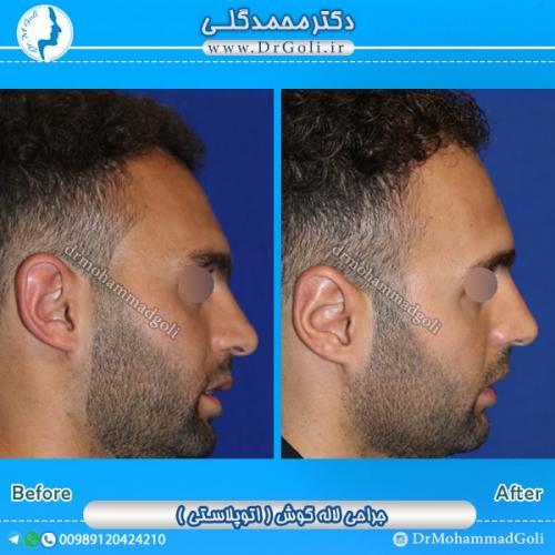 جراحی گوش 1