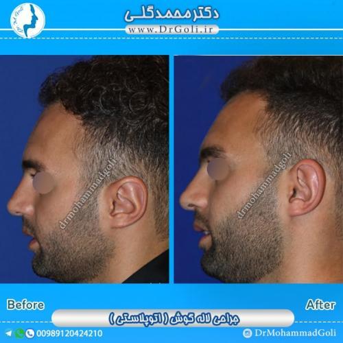 جراحی گوش 2