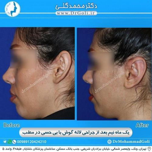 جراحی گوش 27