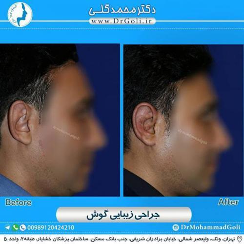 جراحی گوش 68