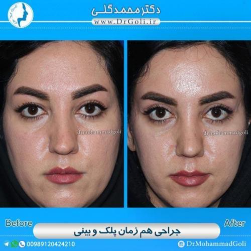 جراحی همزمان پلک و بینی 1
