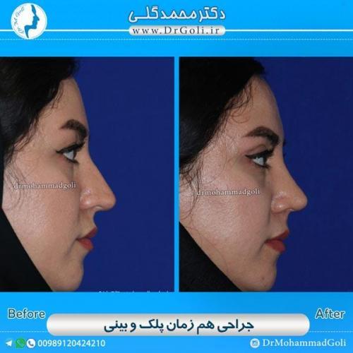 جراحی همزمان پلک و بینی 2