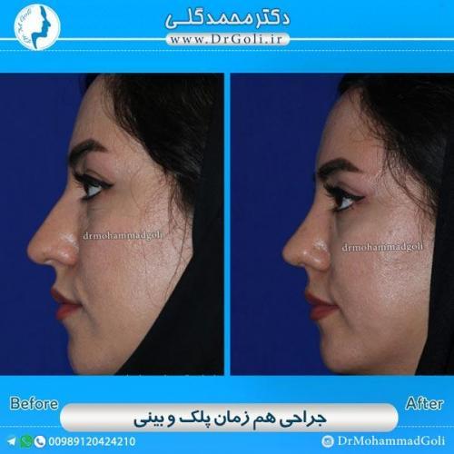جراحی همزمان پلک و بینی 4