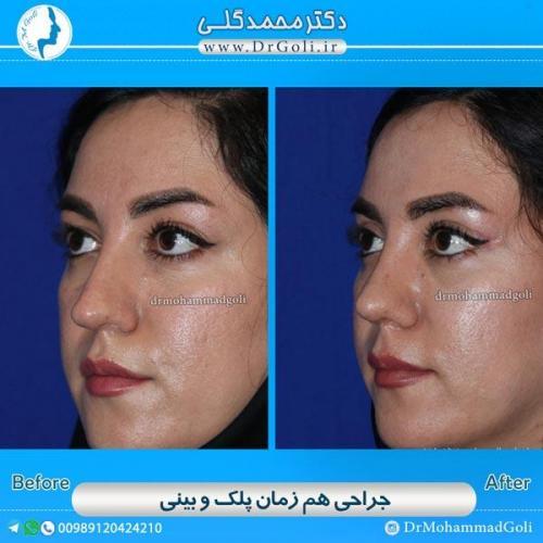 جراحی همزمان پلک و بینی 5