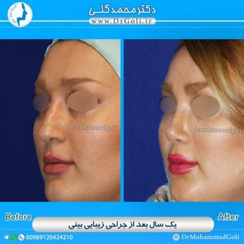 جراحی-بینی-استخوانی-4