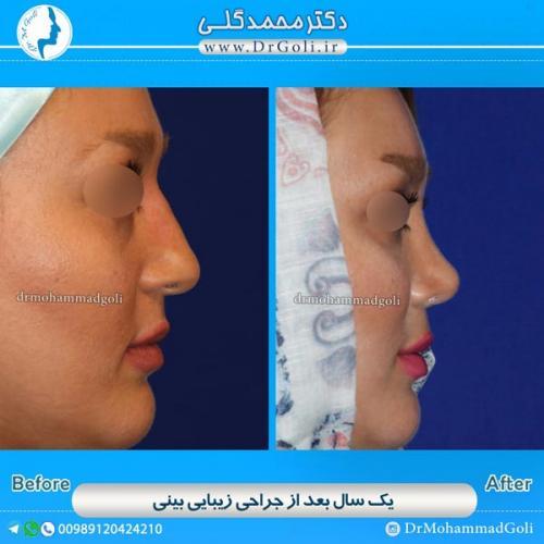جراحی-بینی-استخوانی-7