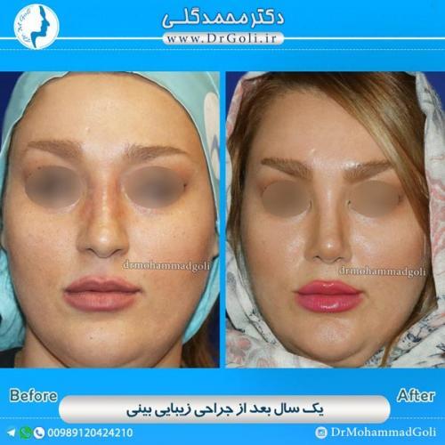 جراحی-بینی-استخوانی-8