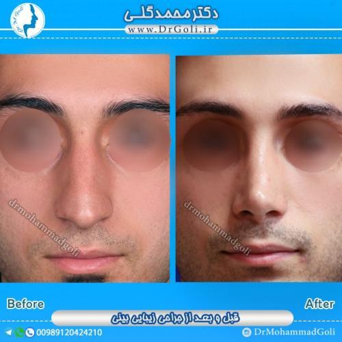 جراحی بینی استخوانی 1