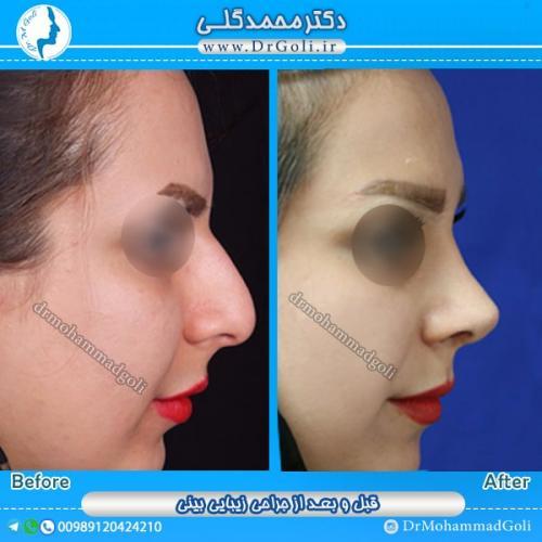 جراحی بینی استخوانی 10