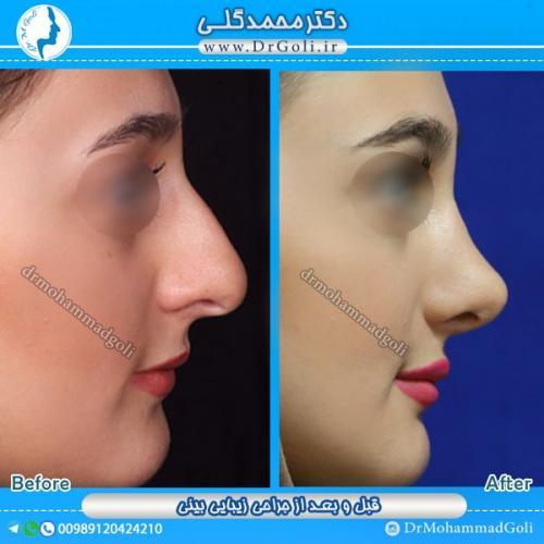 جراحی بینی استخوانی 12