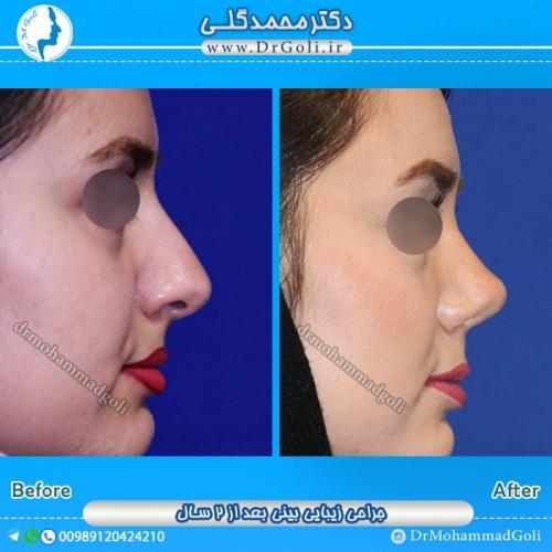 جراحی بینی استخوانی 15