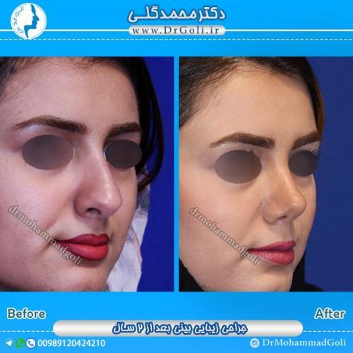 جراحی بینی استخوانی 16