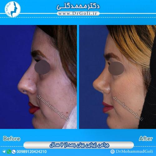 جراحی بینی استخوانی 17