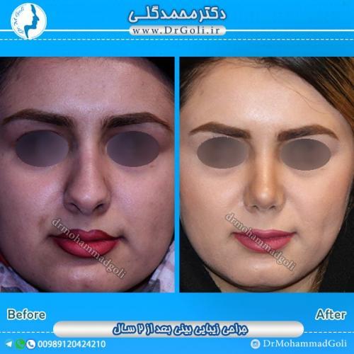 جراحی بینی استخوانی 18