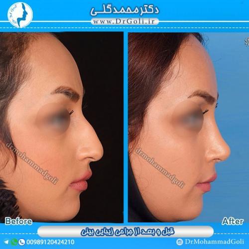 جراحی بینی استخوانی 5